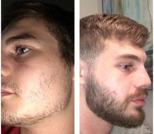minoxidil barba
