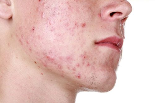 acne y minoxidil