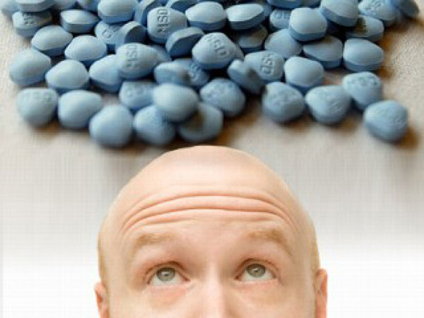 finasterida-y-alopecia