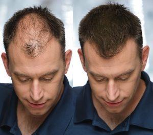 minoxidil perdida cabello
